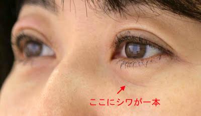 しわ 眼球 結膜弛緩症(けつまくしかんしょう)